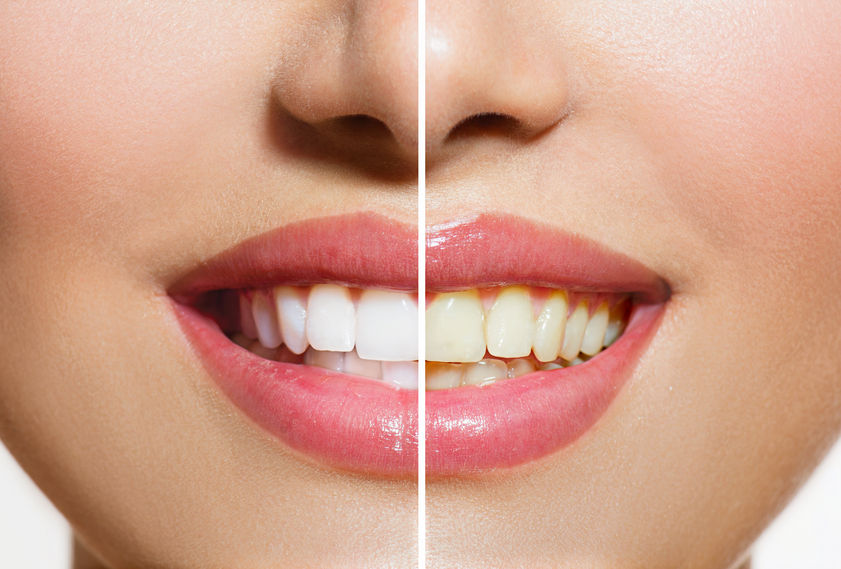 Woman teeth before and after whitening oral care