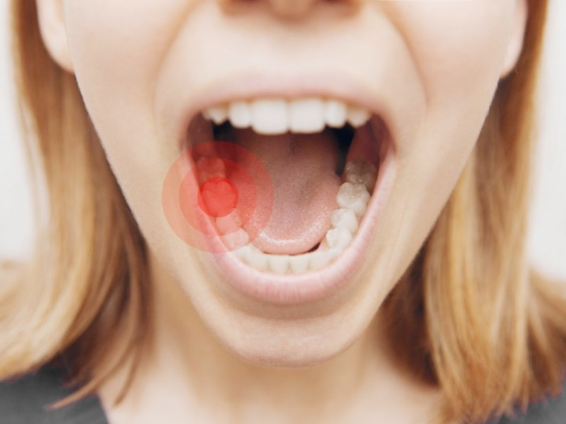 Help Prevent the Dangers of Tooth Decay